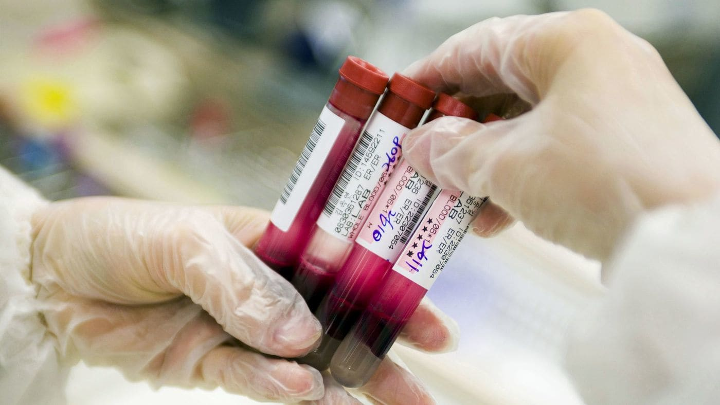A new blood test can detect eight different cancers in their early stage