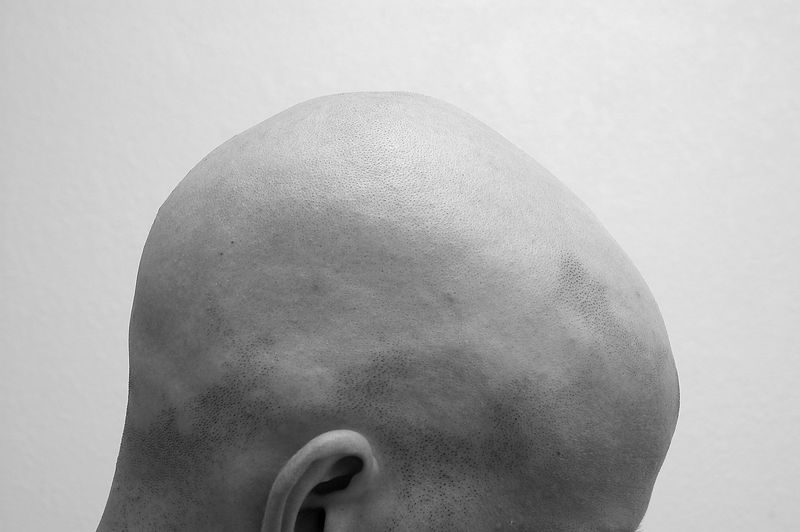 Short, Bald Men May Have Their Genes to Blame