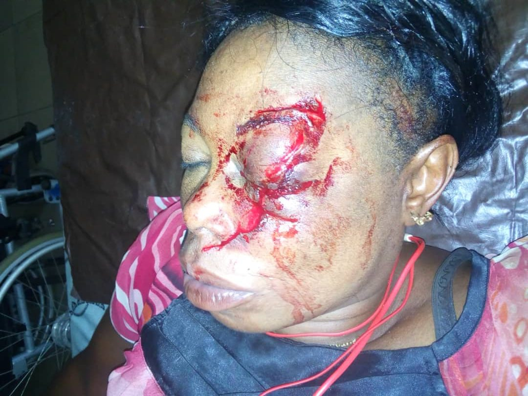 Lagos woman attacked, beaten unconscious and left partially blind after rejecting man's love advances
